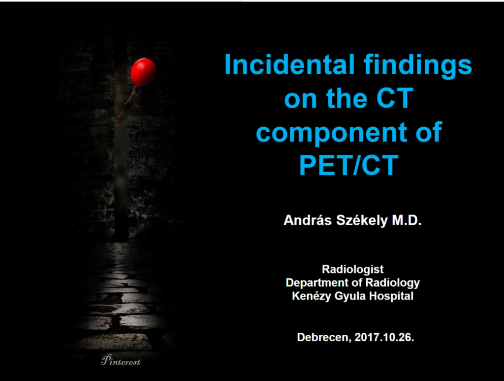 Incidental findings on the CT component of PET/CT