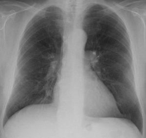 Mellkas röntgen: a jobb alsó lebenyben alig észrevehető a rosszindulatú elváltozás.
